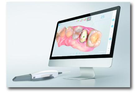 3D Intraoral Scanner